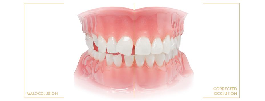 Orthodontist Krakow Poland, orthodontic appliances Krakow