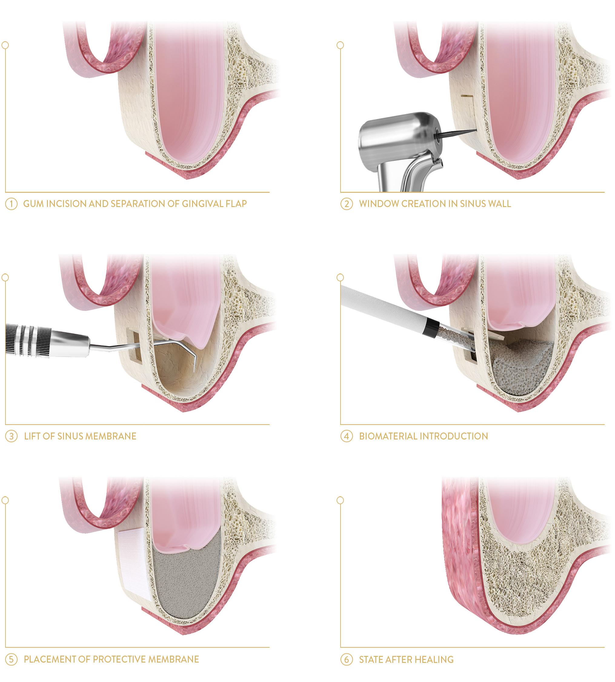 dental implant poland prices
