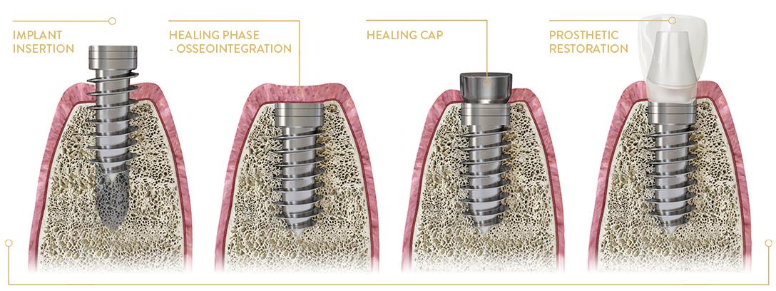 poland dental implants cost