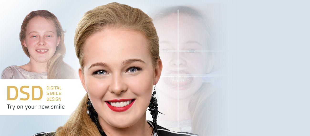 digital smile design cichon krakow poland