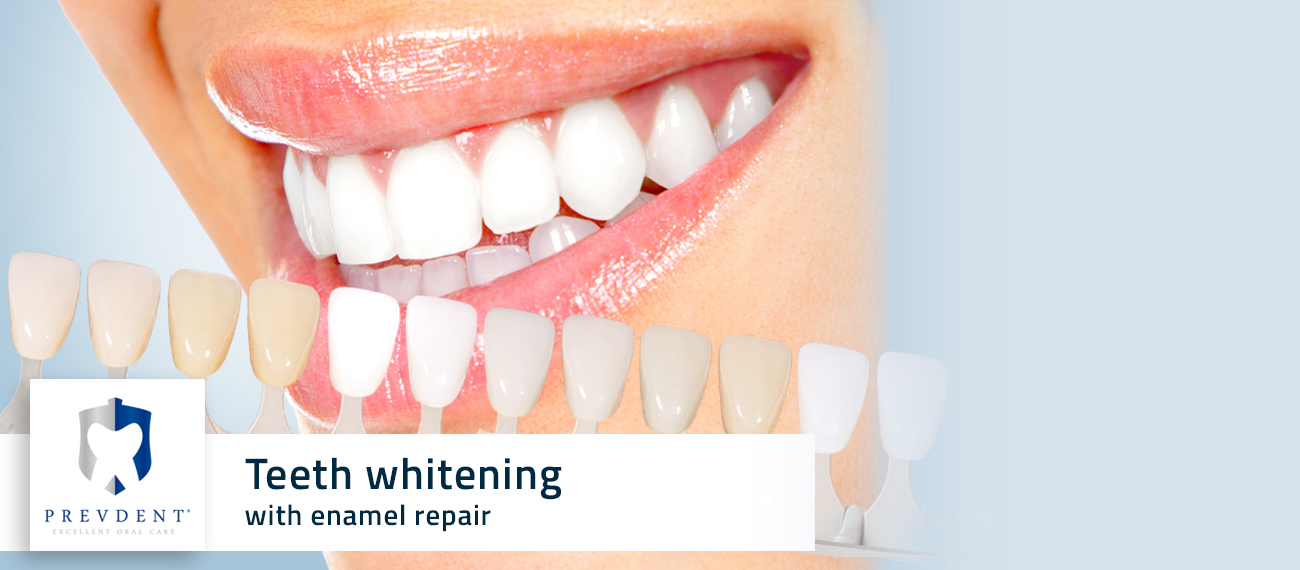 teeth whitening cichon krakow poland